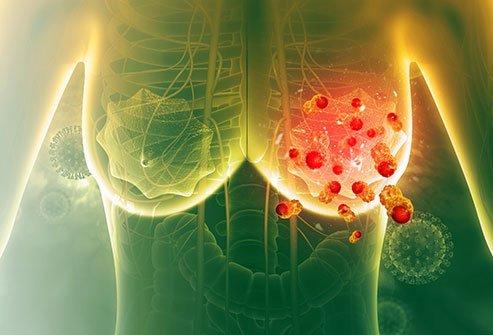 سرطان سینه و متاستاز به ریه