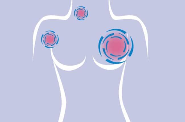 علائم متاستاز سرطان سینه به استخوان نی نی سایت