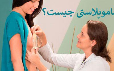 ماموپلاستی چیست | بهترین جراح ماموپلاستی در تهران