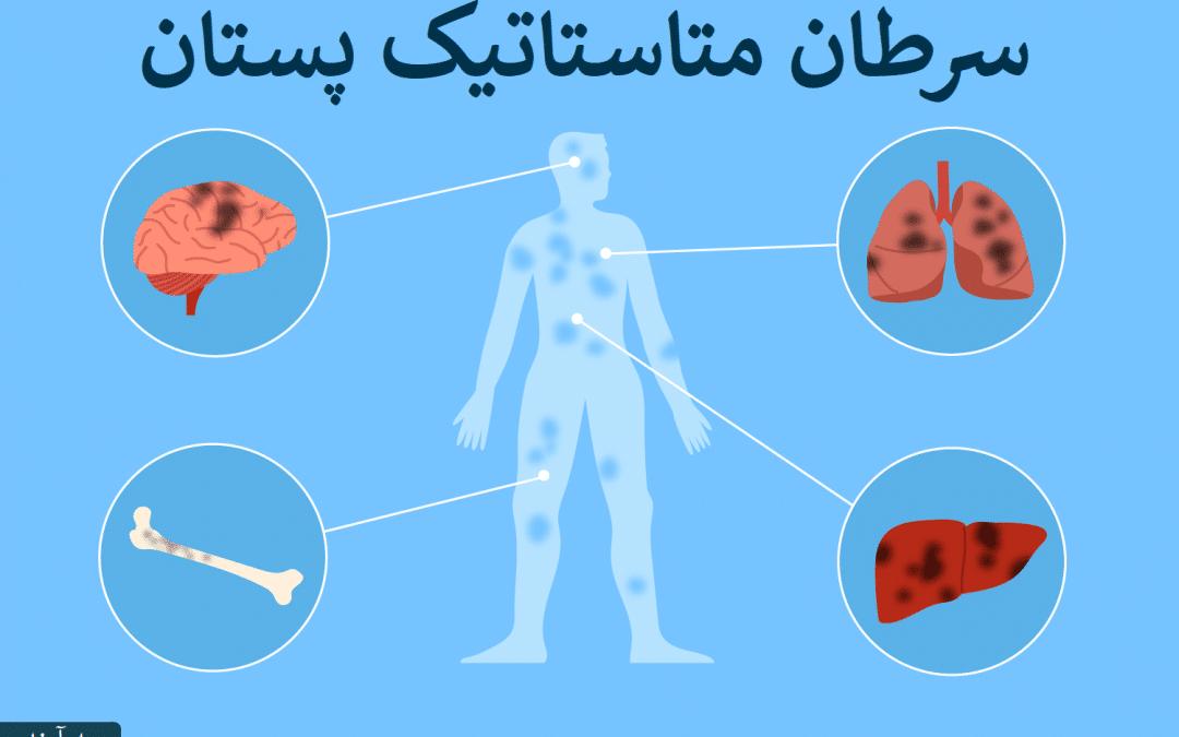 متاستاز سرطان سینه   سرطان متاستاتیک چیست
