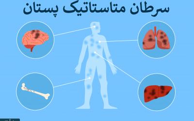 متاستاز سرطان سینه | سرطان متاستاتیک چیست
