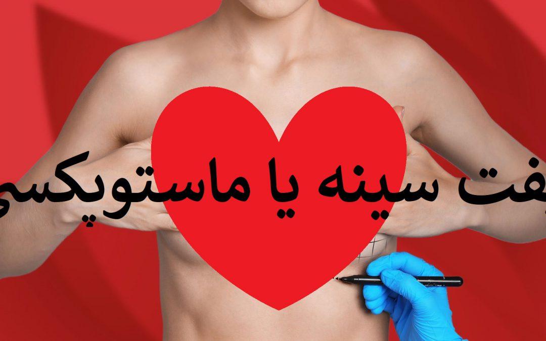 جراحی ماستوپکسی یا عمل لیفت سینه چیست