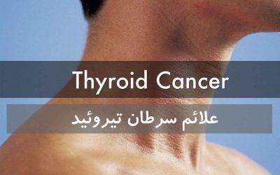 علائم سرطان تیروئید | آیا هرگونه غده ای روی گلو نشانه سرطان است؟