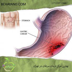 درمان قطعی سرطان معده