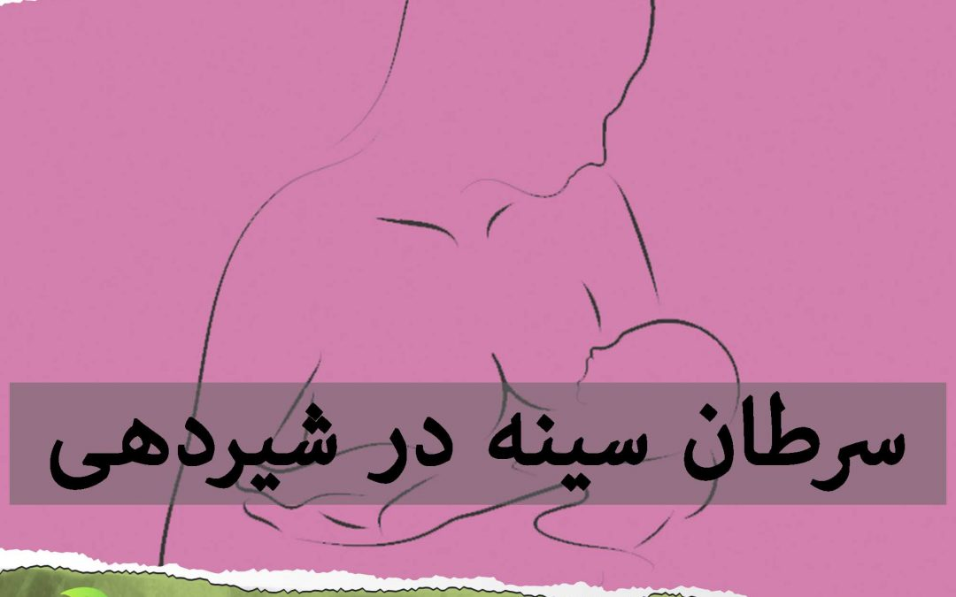 سرطان سینه در شیردهی | آیا شیردهی تأثیری در ابتلا به سرطان سینه دارد؟
